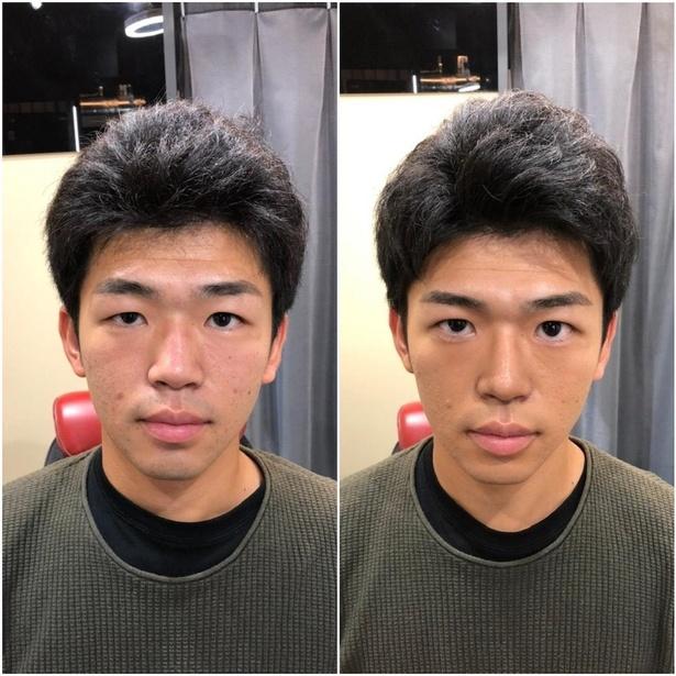 目元がくっきりしたことで目力が増え、よりはっきりとした顔立ちに