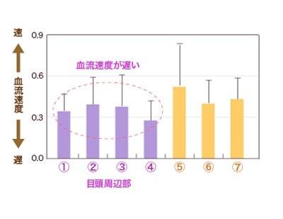 02:こちらは血液の流れる速度のグラフ。紫の目元周りの血液が、黄色の頬や額の血液量よりも遅いことがわかる。