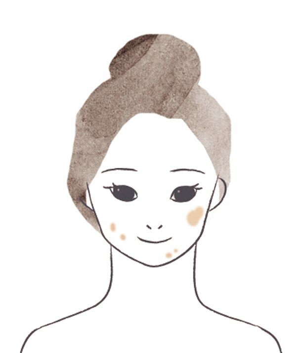 TYPE:01 顔中あちこちにシミシミ~の「老人性色素班」