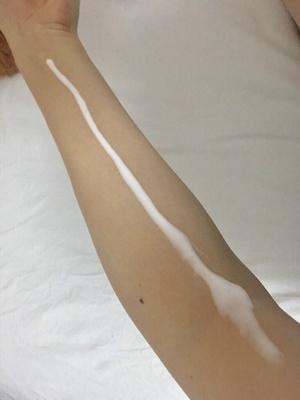 「塗るタイプの日焼け止めは、サーっと一本線を引く感じで腕に出して」