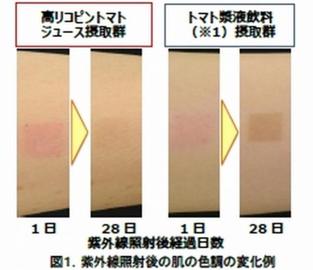 【写真を見る】トマトジュースの有無で肌の色の回復がこんなに違った