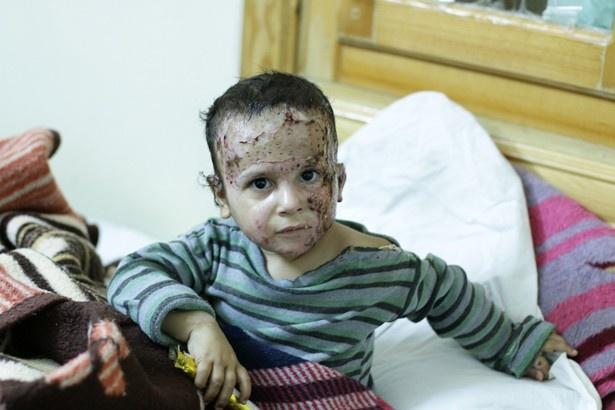 毒ガス攻撃により顔にやけどを負った子ども